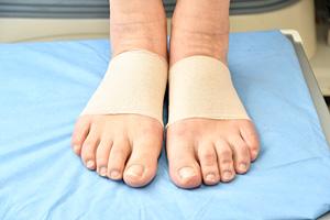 が むくむ の こう 足 足のむくみはふくらはぎマッサージでは効果なし!改善法を医師が解説
